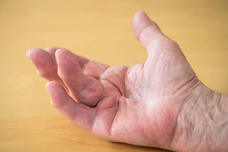 Ρίκνωση Παλαμιαίας Απονεύρωσης Νόσος Dupuytren