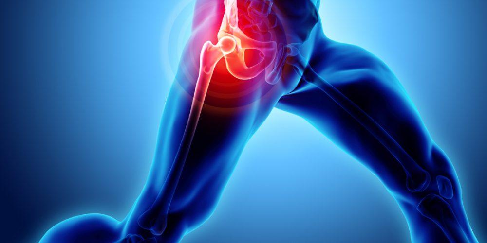 arthritida-ischioy1